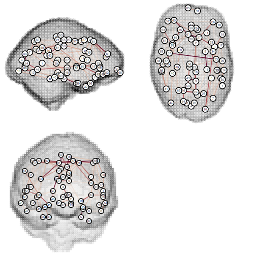Graph shown topologically on brain